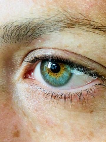 Trousse Allergie oeil