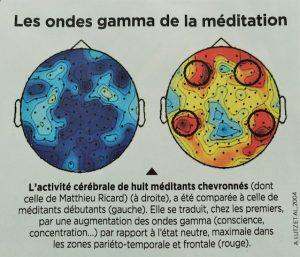 Imagerie cerebrale meditation